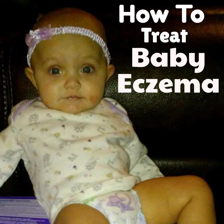 What Is Eczema And What Is The Best Eczema Creams For