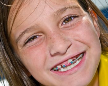 How Braces Can Give Your Kids Better Overall Dental Health