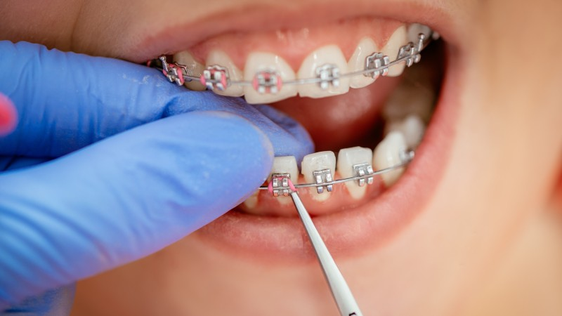Types of Braces Bands